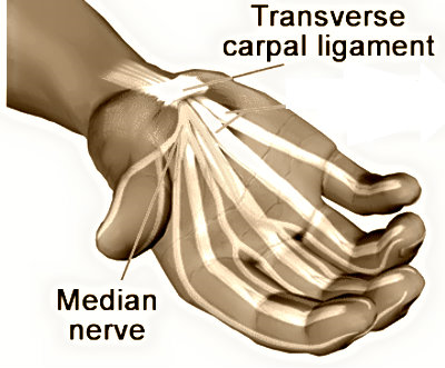 How To Deal With Carpal Tunnel Pain